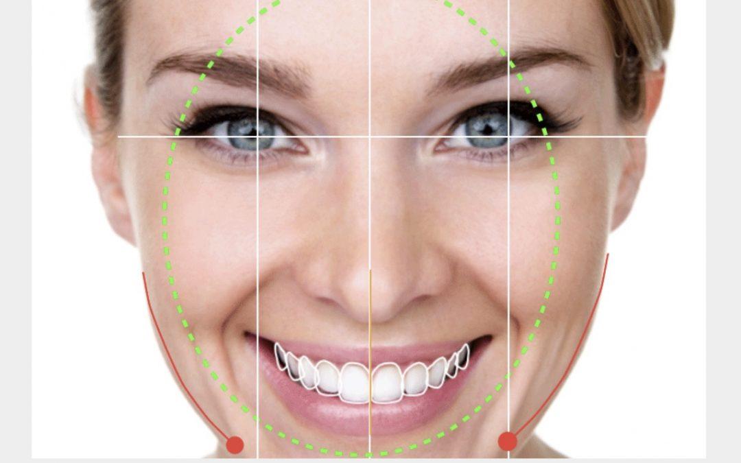 Diseño Digital de Sonrisa en Madrid Centro