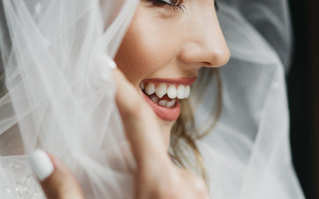 Sonrisa 10 el día de tu boda en Madrid centro