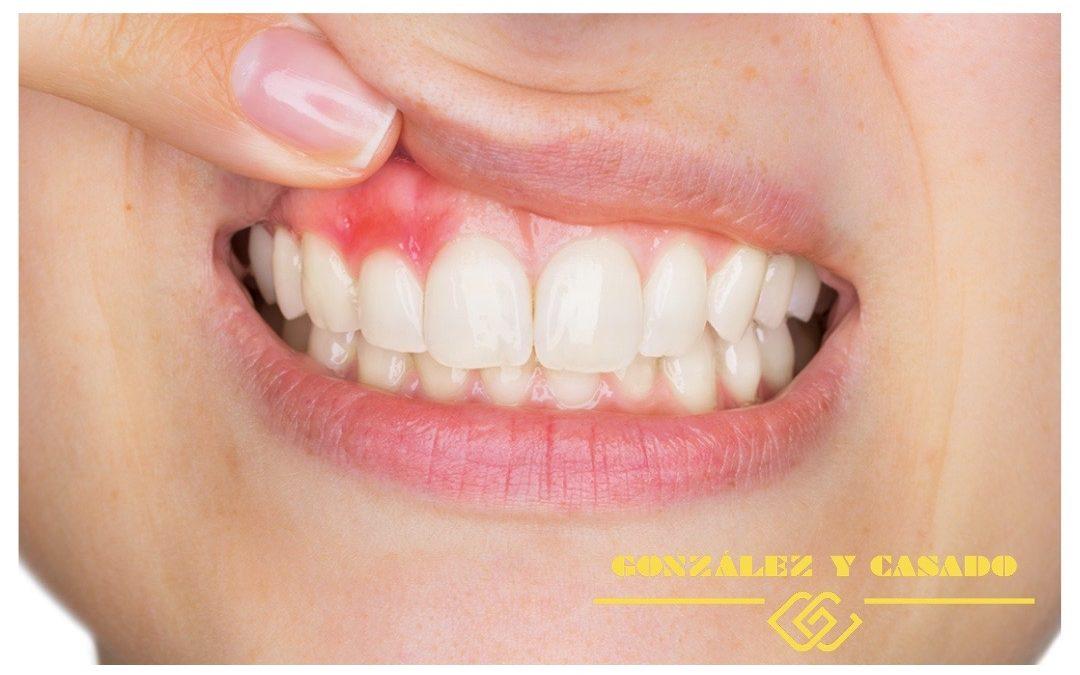 Síntomas y tratamiento de la gingivitis en Madrid centro