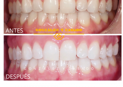 gycblanqueamientodental