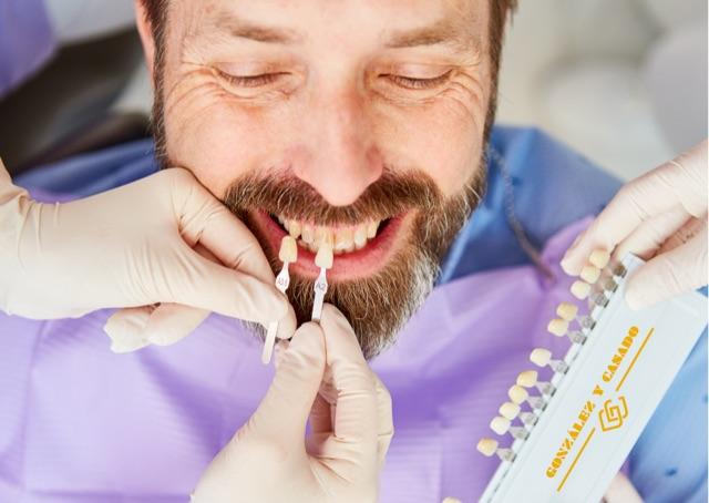 ¿Cómo eliminar las manchas de tetraciclinas de los dientes en Madrid centro?